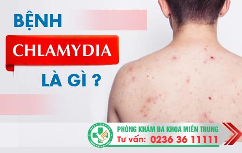 Bệnh Chlamydia là gì Có gây nguy hiểm không?