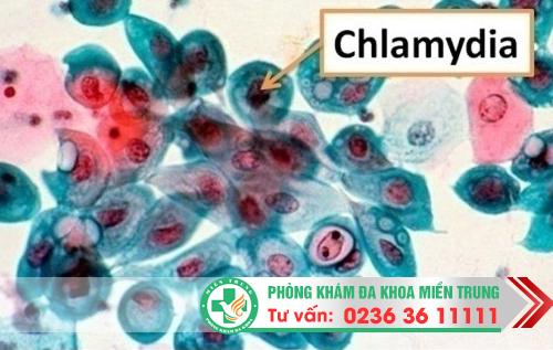 Những biến chứng thường gặp của bệnh chlamydia